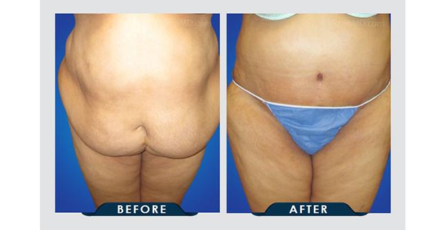 Tummy Tuck Los Angeles Ca Healthy Life Bariatrics