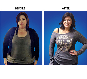 actual patient before and after gastric sleeve surgery