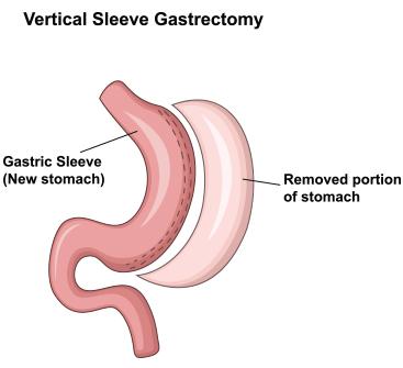 Gastric sleeve representation