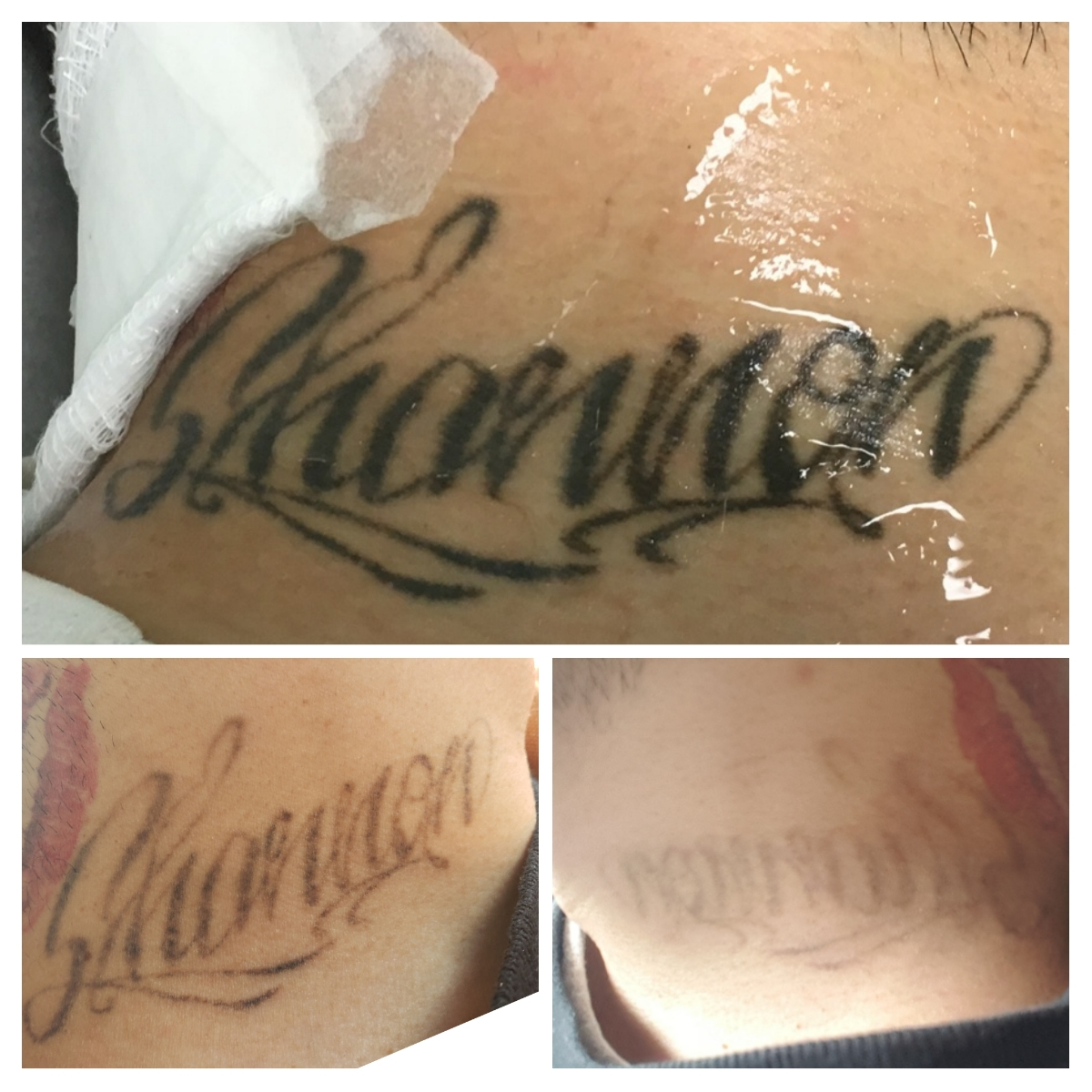 Laser Tattoo Removal Specialist - Munster, IN: N  Hasan, MD