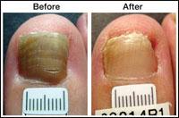 Laser Treatment for Toenail Fungus Case 1