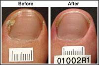 Laser Treatment for Toenail Fungus Case 2