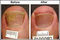 Laser Treatment for Toenail Fungus Case 3