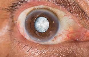 Cataracts Specialist - Hapeville Atlanta, GA: Atlanta Vision ...