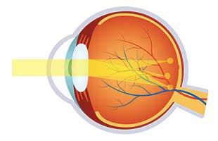 Doctor Leonard Achiron, Optometrist, Atlanta Astigmatism