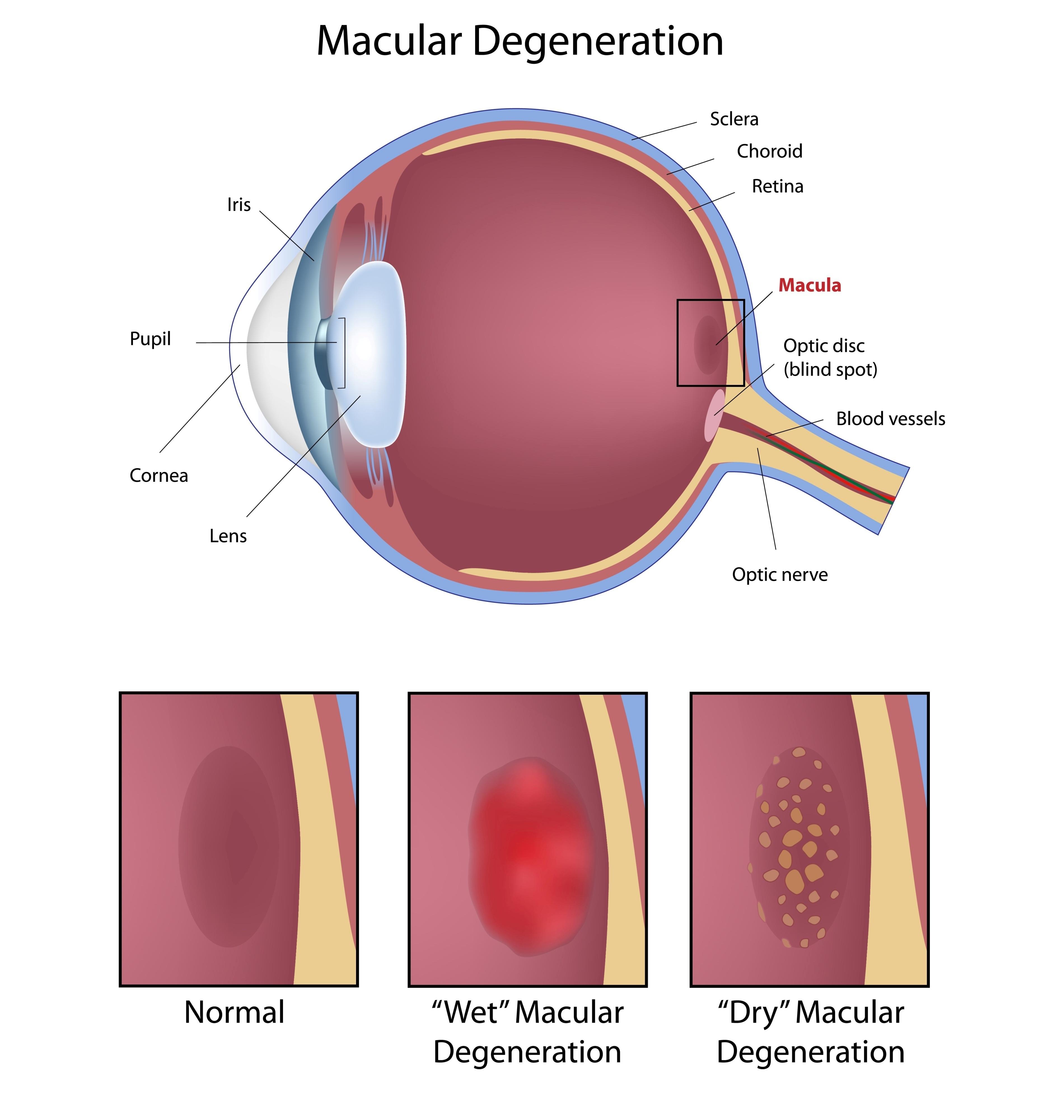 Doctor Leonard Achiron, Optometrist, Atlanta Macular Degeneration