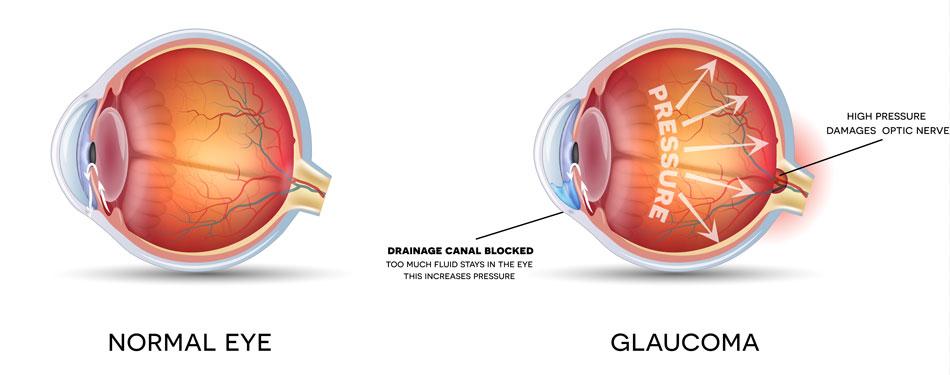Doctor Leonard Achiron, Optometrist, Atlanta Glaucoma