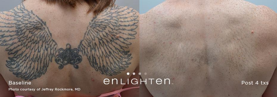 tatoo removal, cutera enlighten