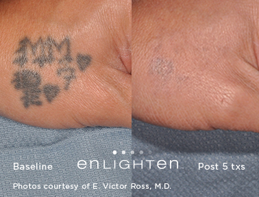 tatoo removal, enlighten