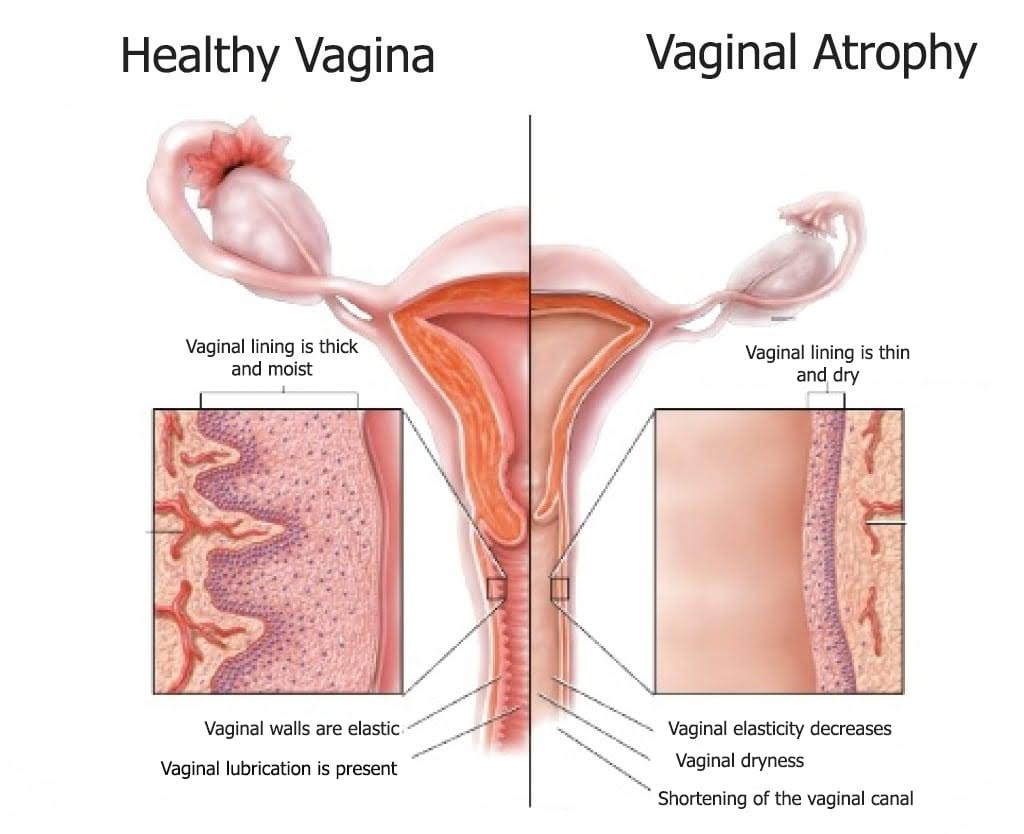 What cause vaginal pain