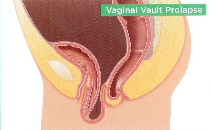 Vaginal Vault Prolapse