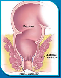Fecal Incontinence