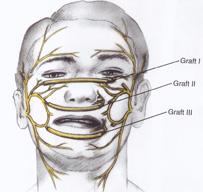 Facial Reanimation