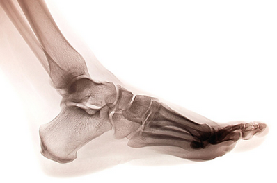 x ray of heel spur