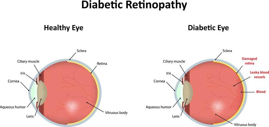 Doctor Leonard Achiron, Optometrist, Atlanta Diabetic Retinopathy