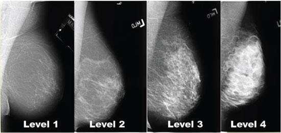 Breast Density on a Mammogram Susan G Komen