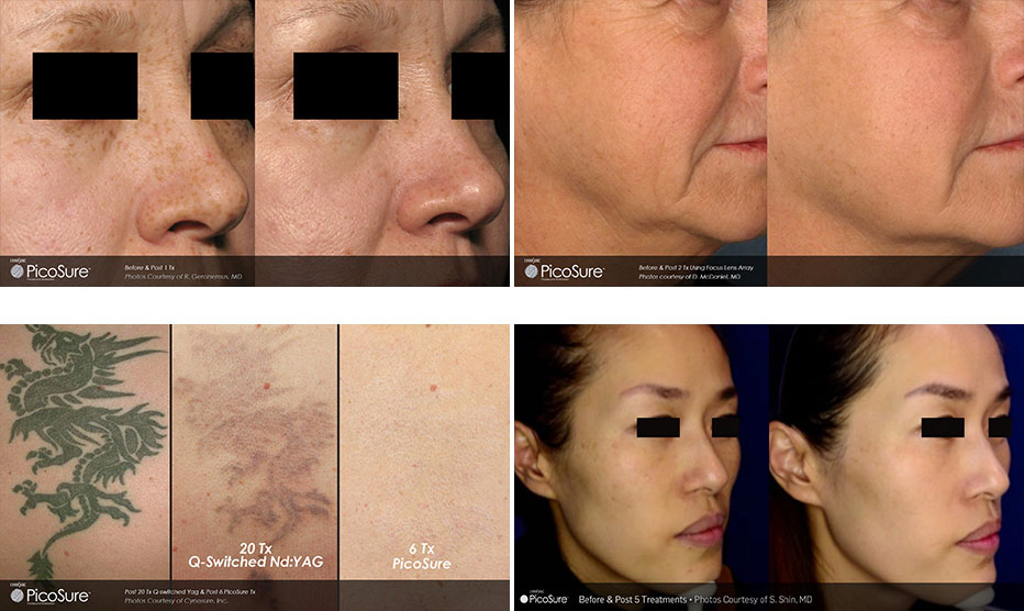 Picosure kahului hi esthetica maui laser clinic and medspa for Picosure tattoo removal maryland