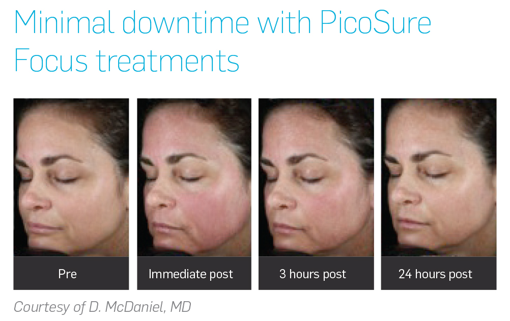 Picosure Focus Laser Skin Treatment Vienna Va Untattoou