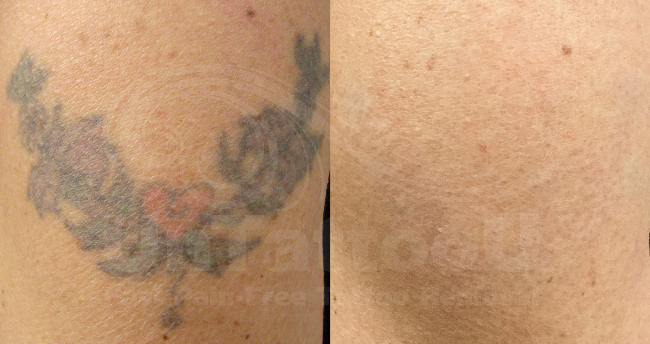 Tattoo Removal 2