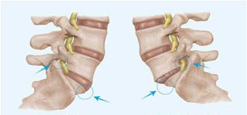 scoliosis and listhesis Scoliosis affects the entire body - spinecor brace and scroth exercises from scoliosissystemscom.