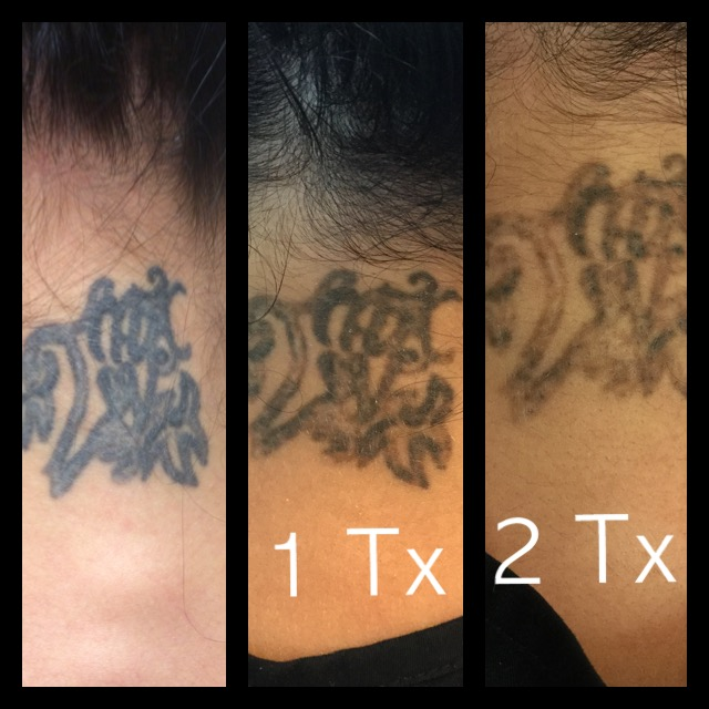 Tattoo Removal Specialist - Cedar Park, TX: Luxe Laser and Wellness