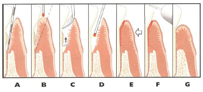 gum diagram