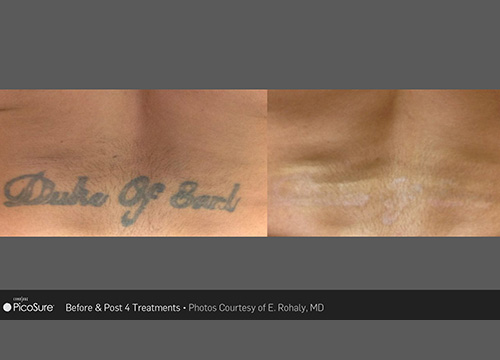 Laser Tattoo Removal Specialist - Park Slope Brooklyn, NY
