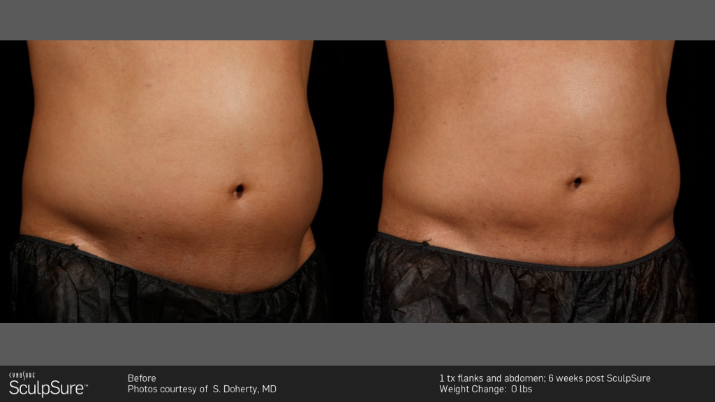 Sculpsure Specialist Upper East Side New York Ny Hooman Khorasani M D Cosmetic Surgeon