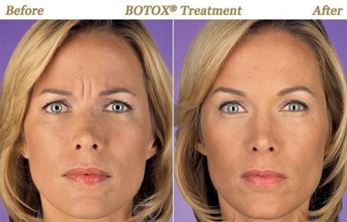 Botox Encino