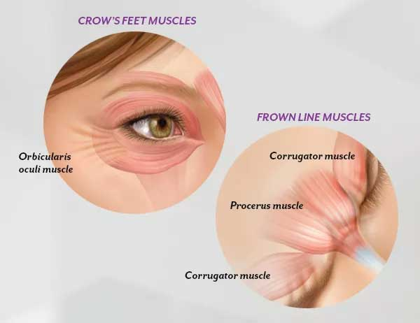 Natural Botox Effect For Eyes