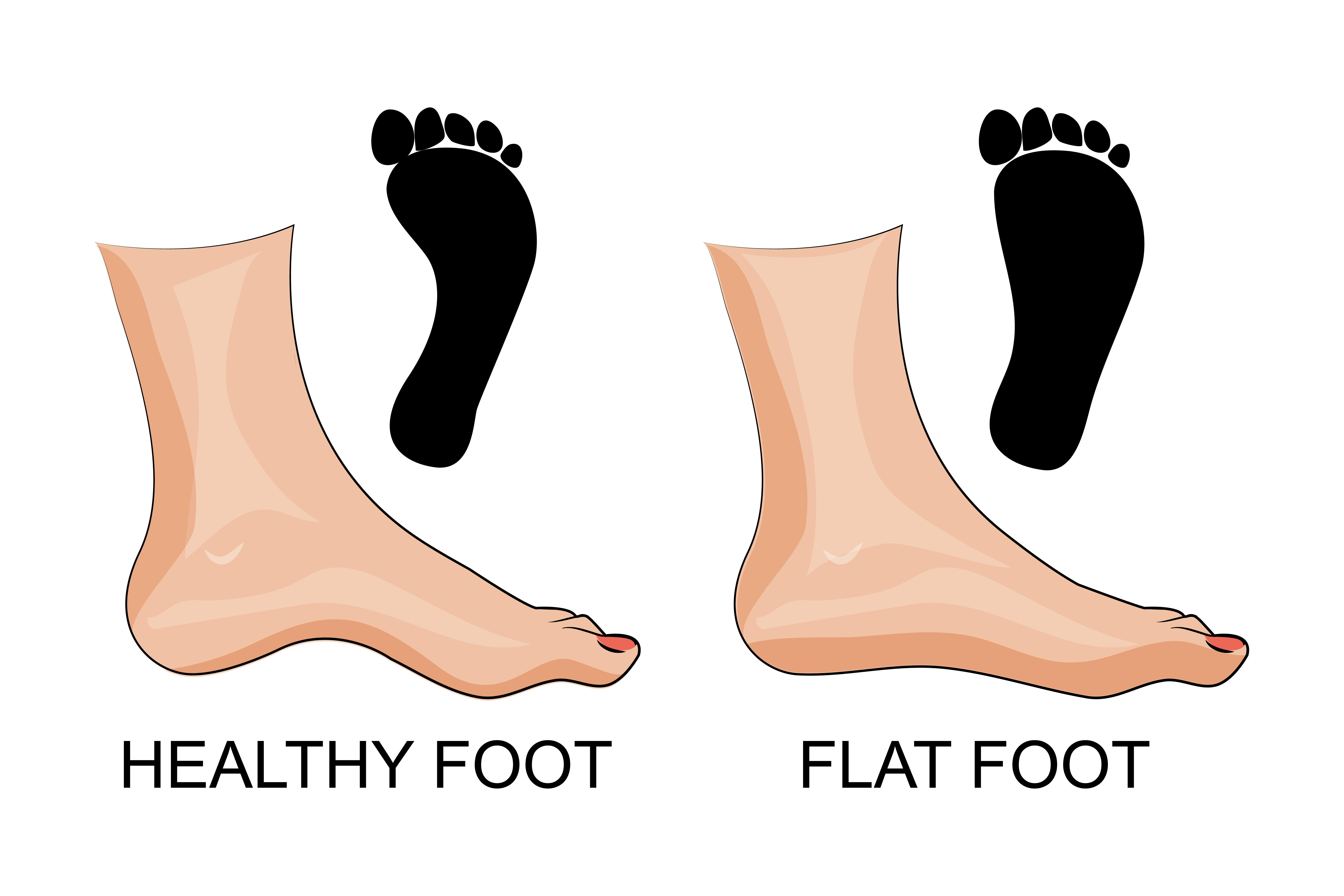 Flat Feet2