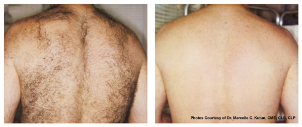 Laser Hair Removal Specialist Irwin Pa Irwin Laser Center