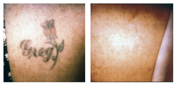 Tattoo Removal Specialist - Irwin, PA: Irwin Laser Center