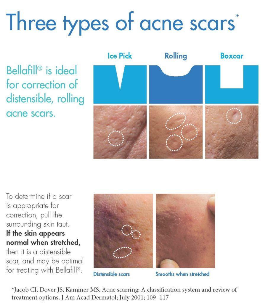 three types of acne scars