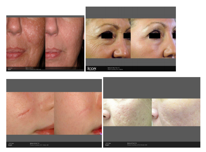 Laser Facial before and after