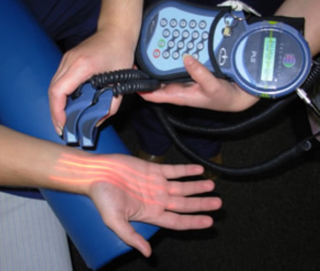 Cold Laser Therapy Hand