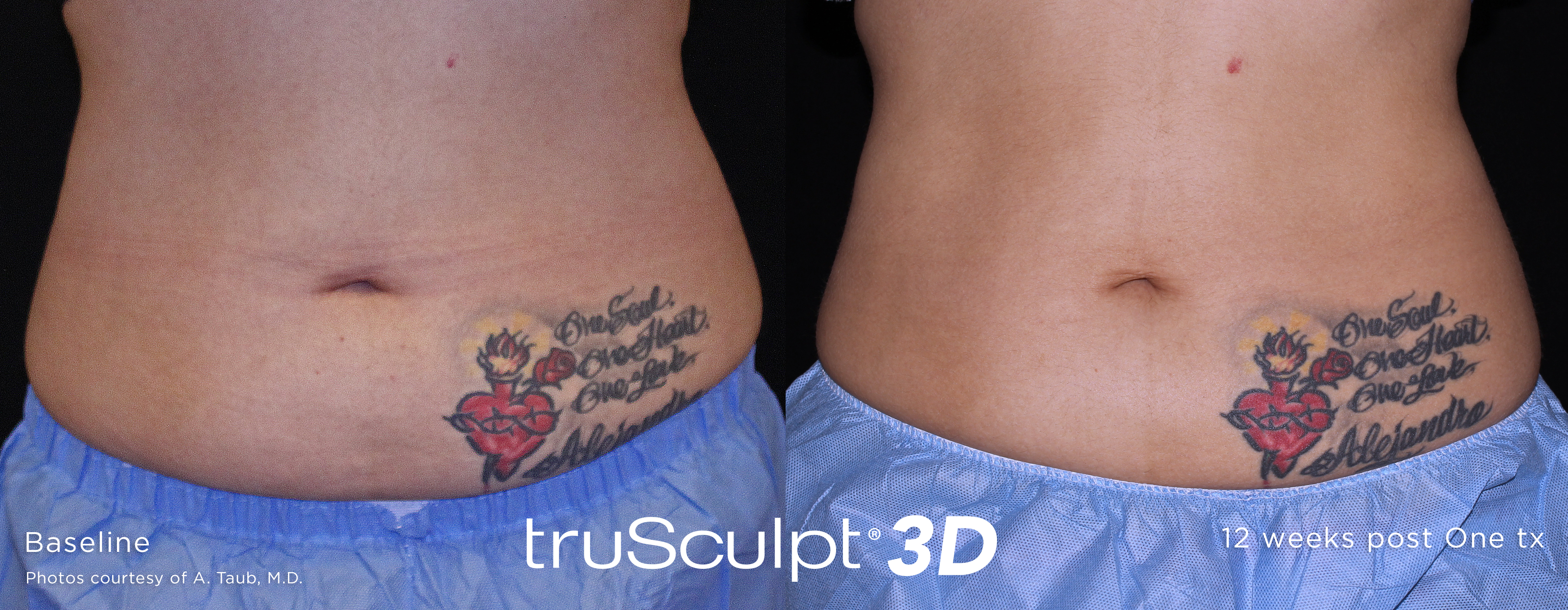 trusculpt before and after