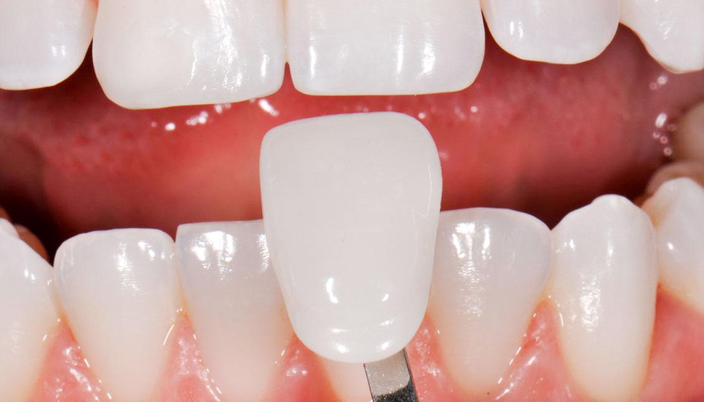 Image result for porcelain procedure for teeth