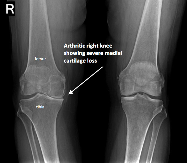 Knee Xray - Century City Los Angeles, CA: Millstein Orthopedics