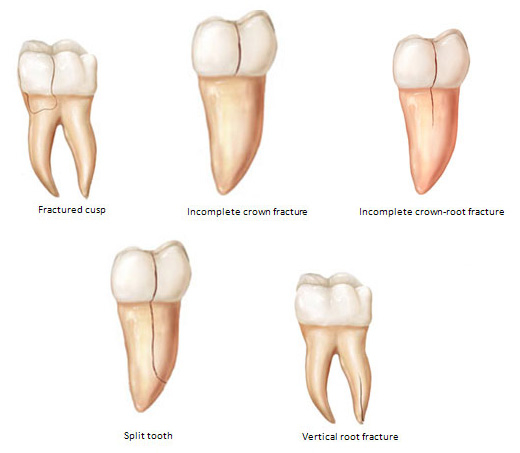 cracked tooth syndrome คือ