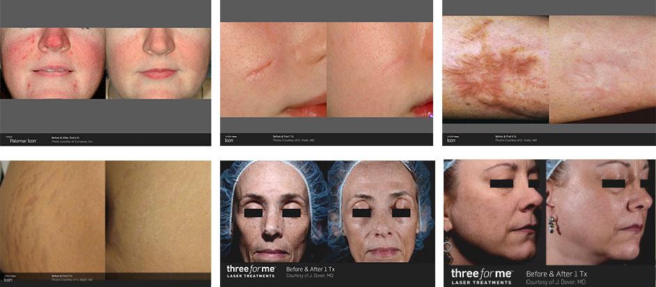 Laser Skin Resurfacing Specialist - Ventura, CA: Neda