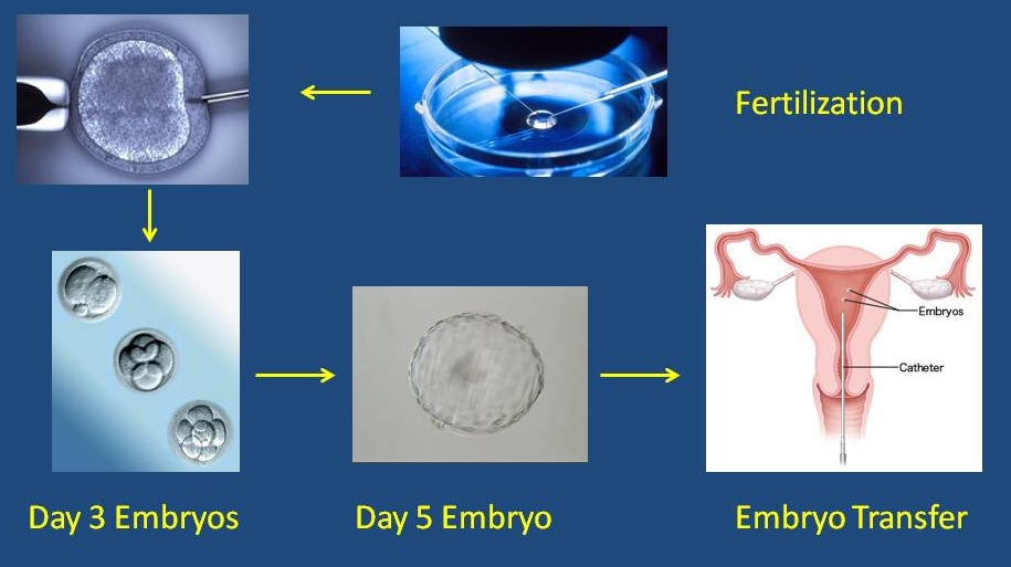 the hidden dangers of in vitro fertilization The first signs that fertilization have occurred visibly in the development of two round bodies in the center of the egg the slightly smaller body is the female pronucleus and contains 23 chromosomes that the egg contributes to the embryo the other round body is the male pronucleus and contains the contribution of 23 chromosomes from the sperm.