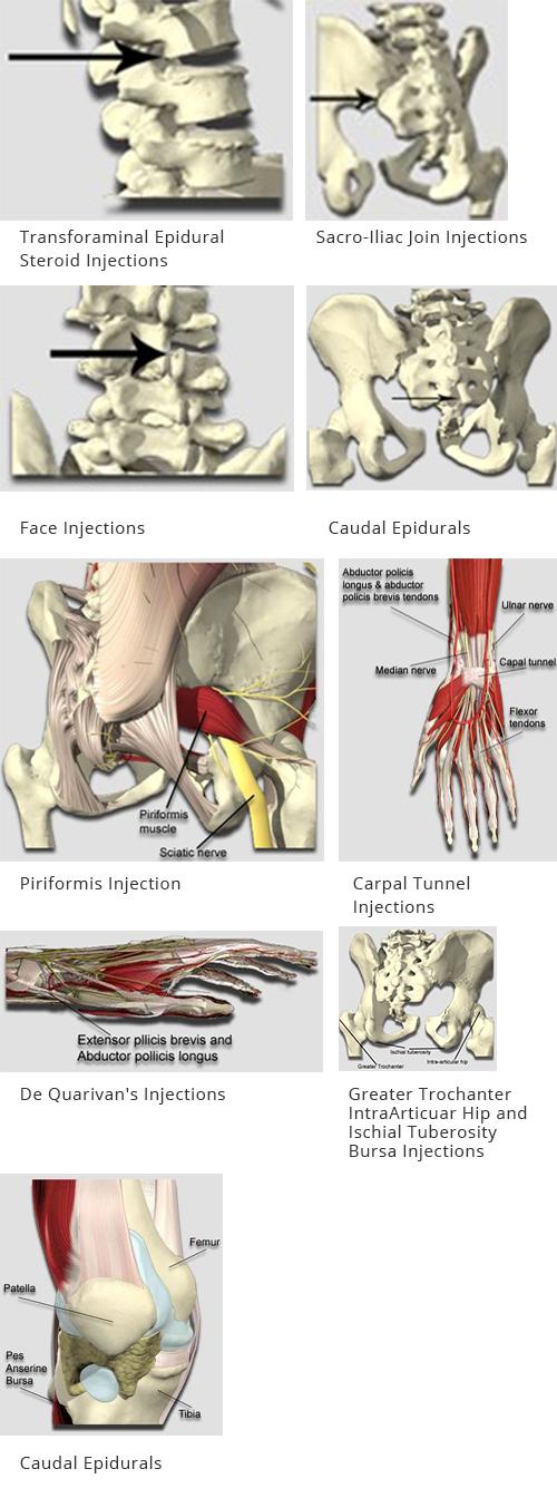 Injections Pembroke Pines Fl Berkower Pain Spine Rehabilitation