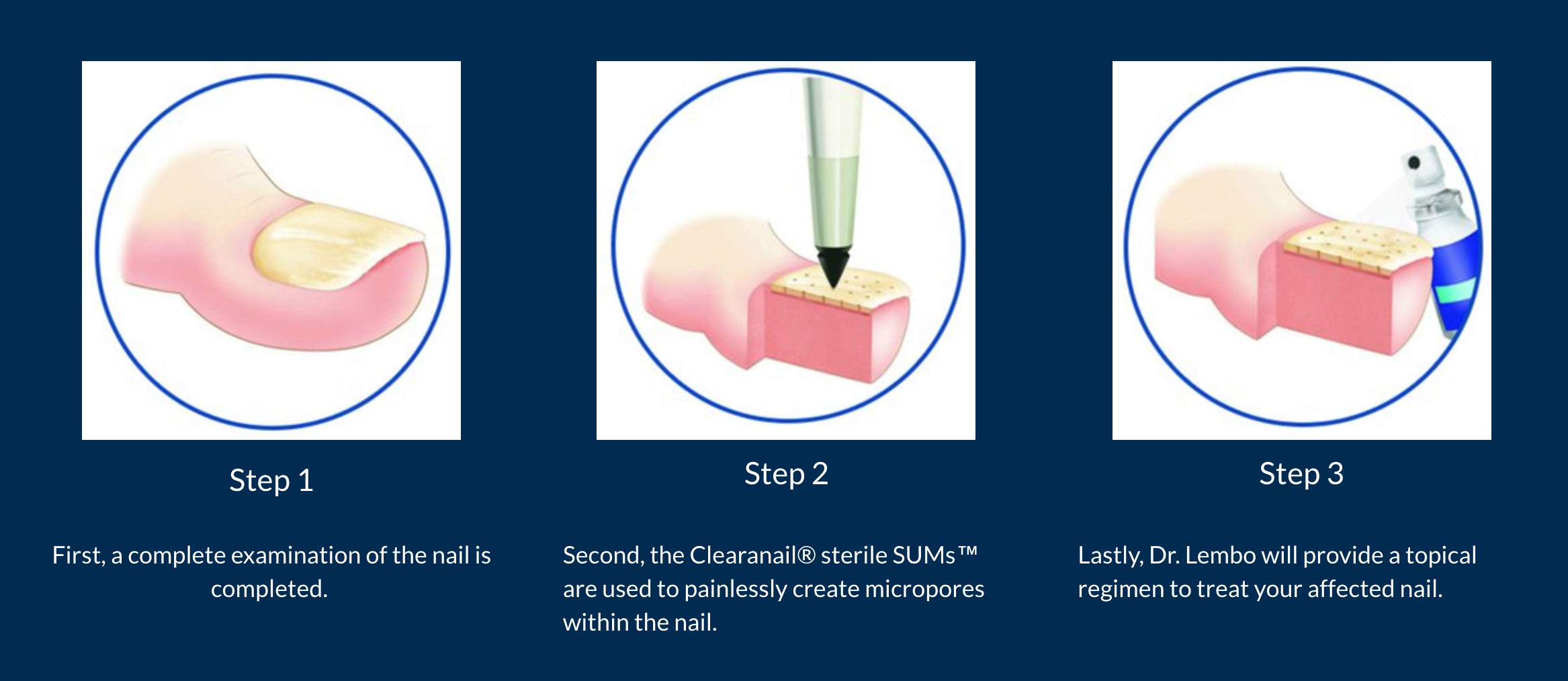 Clearanail® Nail Treatment - Midlothian, VA: Adult & Child