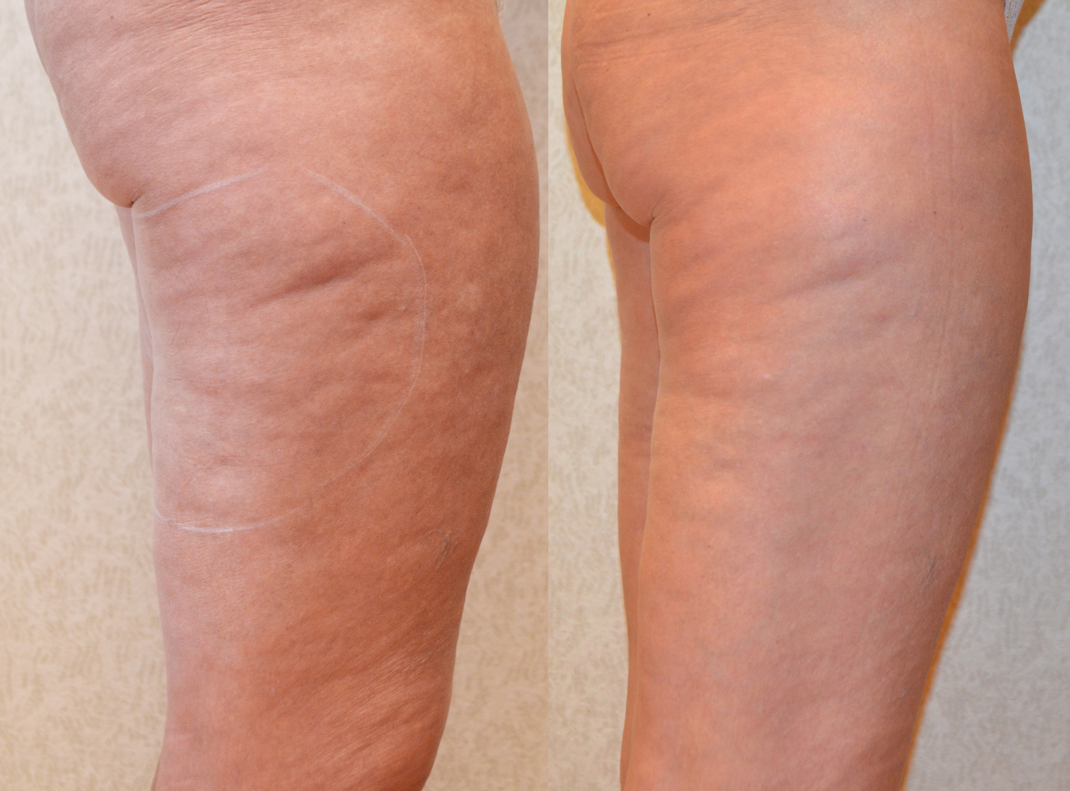Cellulite/Stretch Mark Reduction - Beverly Hills, CA..