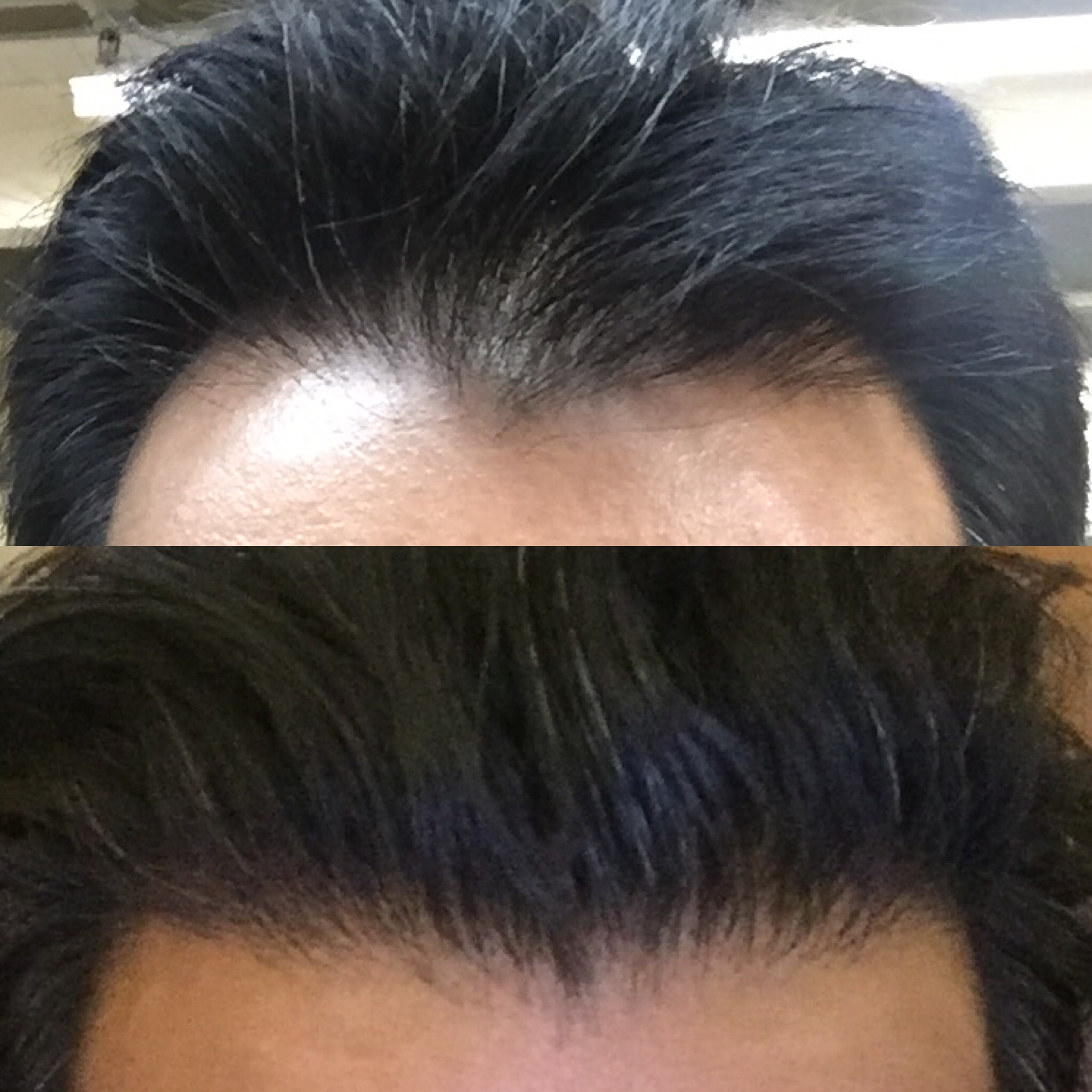 Substantial Hair Growth In The Hairline After 4 Sessions Using Platelet Rich Plasma Prp
