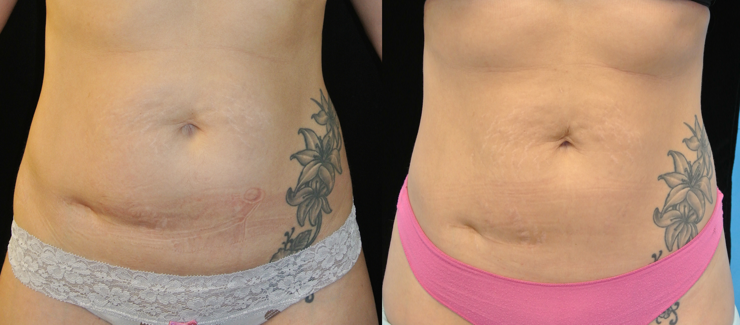 Body Contouring Lasers Fat Melting Beverly Hills Ca
