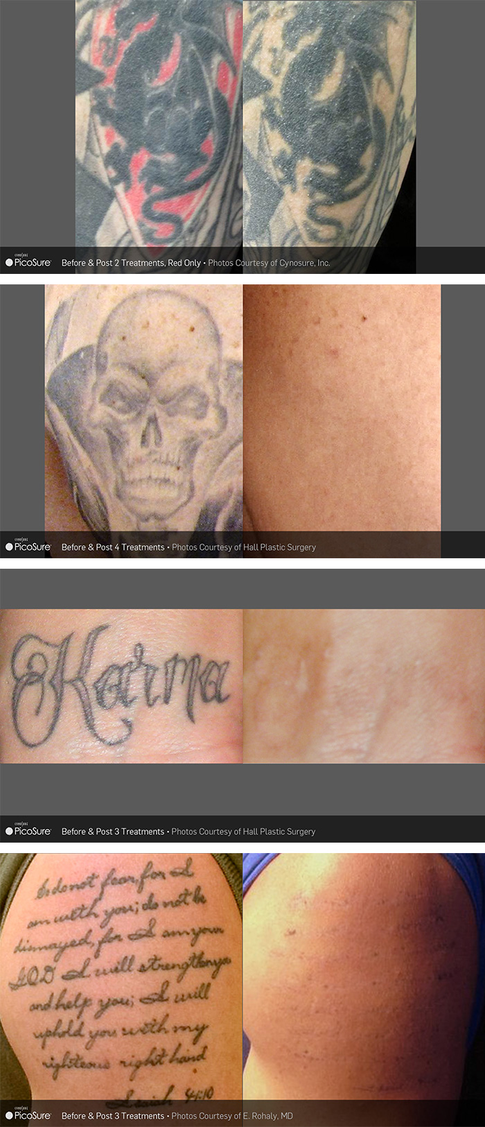 tattoo removal los angeles