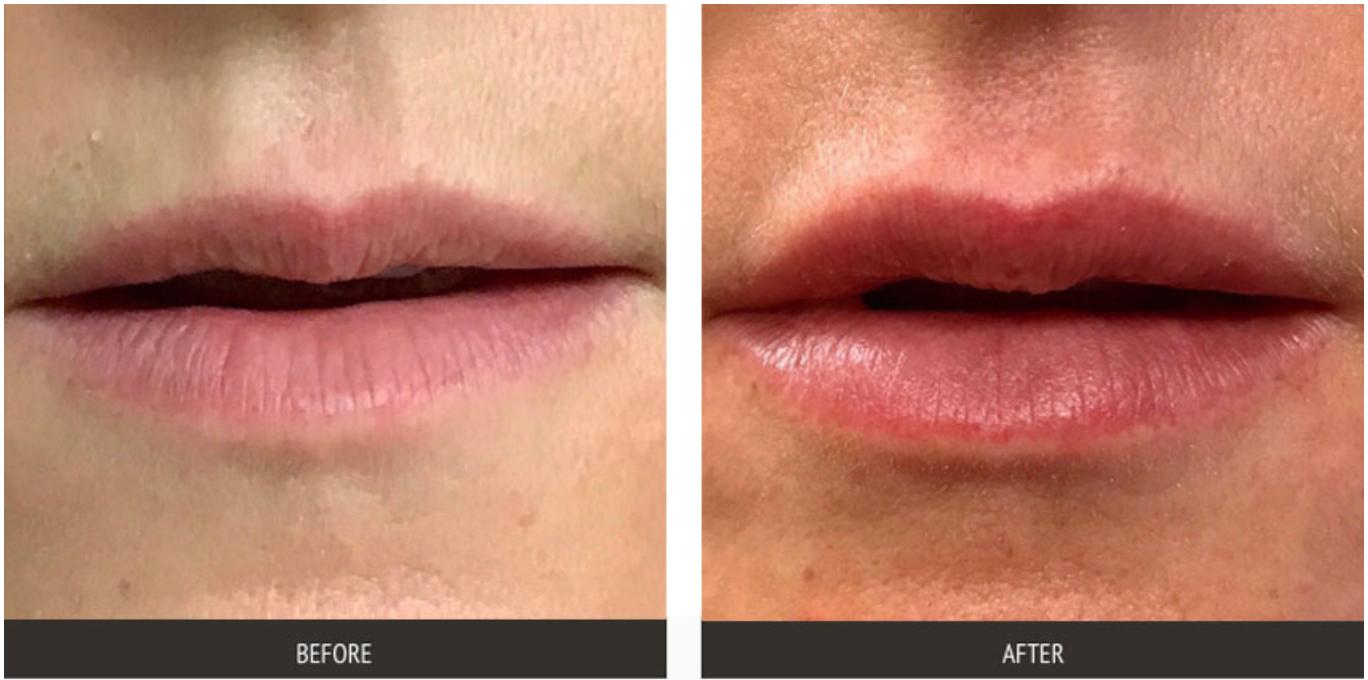 Lip Augmentation Specialist - Upper East Side New York, NY