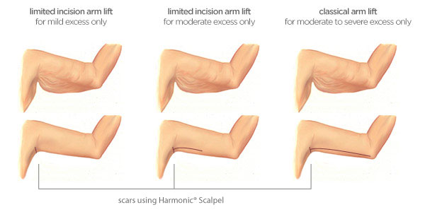 Armlift Diagram